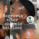 How to regrow edges – chronic hairloss