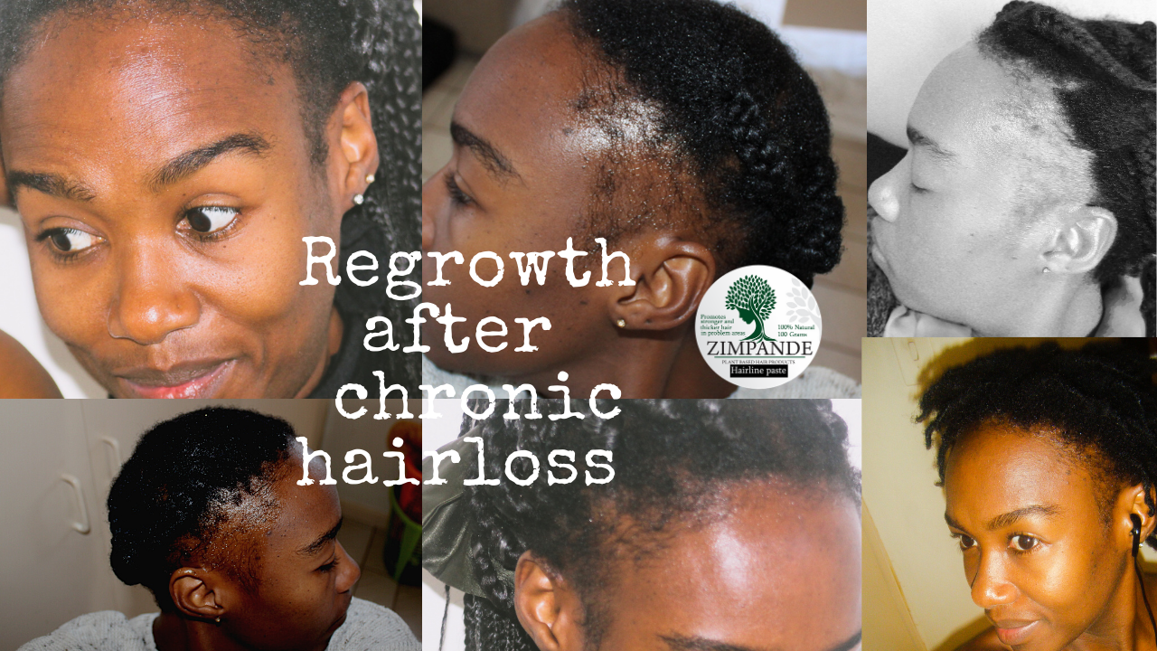 How to regrow your edges - chronic hairloss hairline